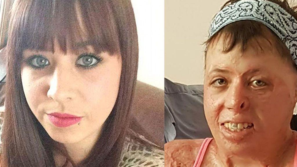 """El testimonio que hay tras sus cicatrices: """"Me dieron una segunda oportunidad para vivir"""""""