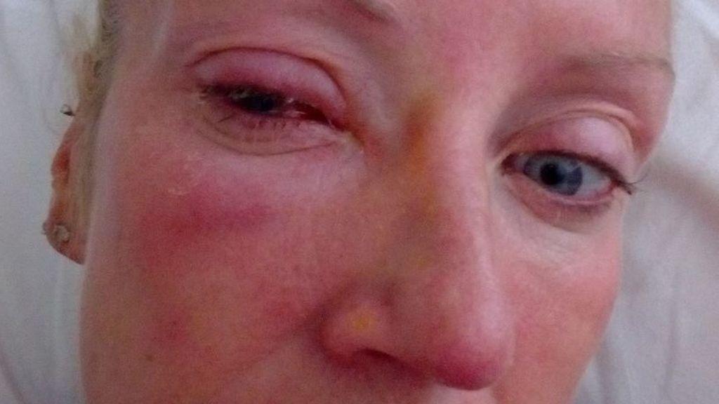 Un parásito que se le pegó a la lentilla le come el ojo y le deja ciega