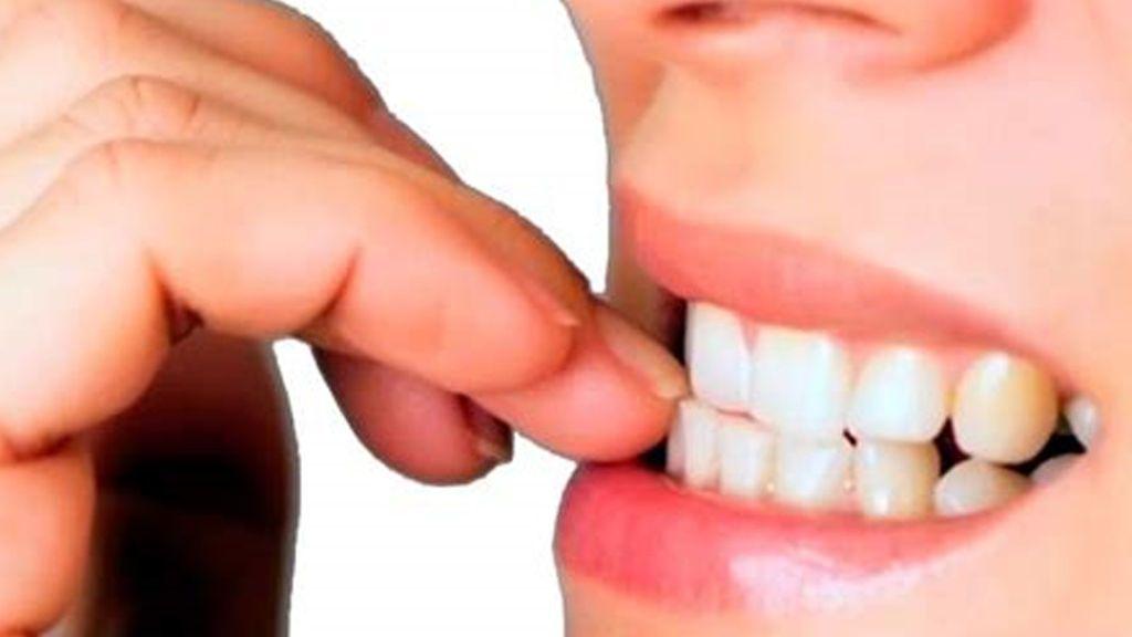 ¿Cuáles son los motivos por los que nos mordemos las uñas?
