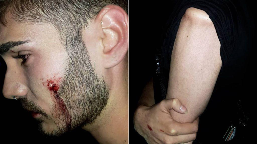 Nueva agresión homófoba a un joven en una discoteca de Alcorcón (Madrid)