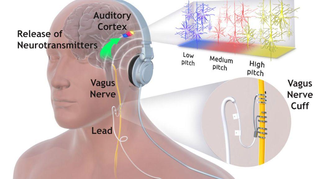 Una alternativa para tratar la depresión:  Estimular el nervio vago con impulsos eléctricos