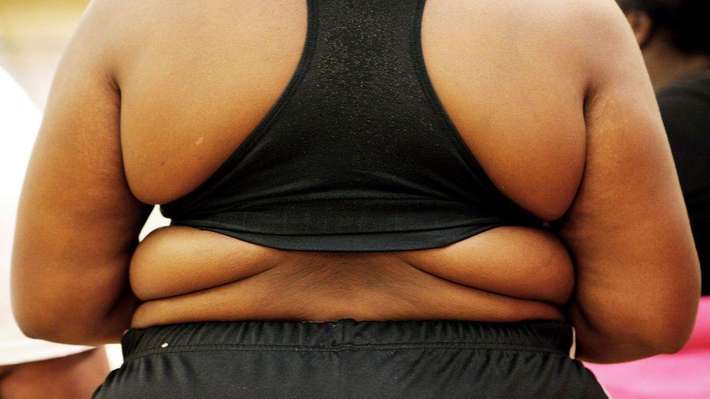 Desvelan que el ansia por comer es culpa del cerebro y cuanto más obeso, menos voluntad