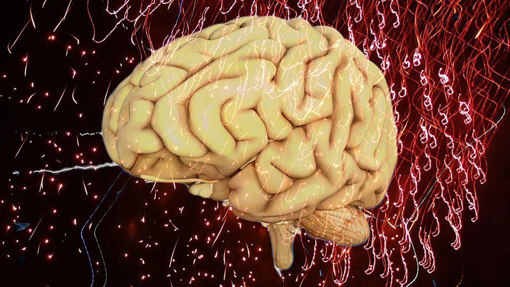Un dispositivo implantado en el cerebro podría detener y prevenir ataques epilépticos