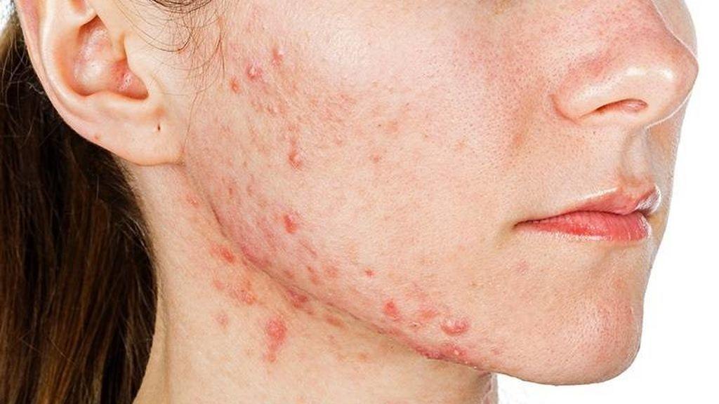 Desarrollan una vacuna para combatir el acné
