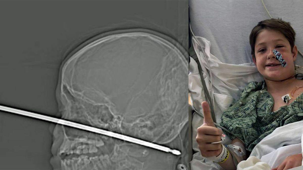 """""""Me voy a morir mamá"""": el caso del niño de 10 años que se clavó un pincho de cocina en la cara"""