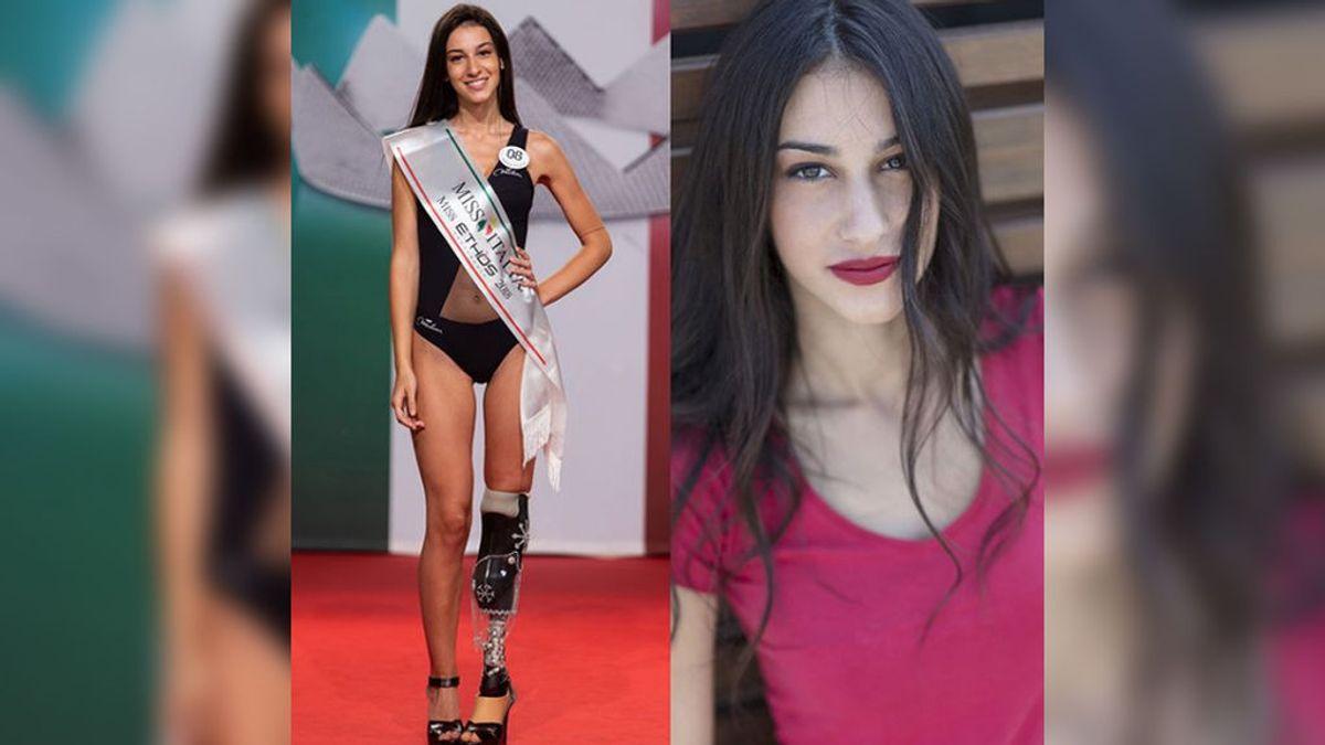 Chiara Bordi, la aspirante a Miss Italia que desafía el canon de belleza con una prótesis en la pierna