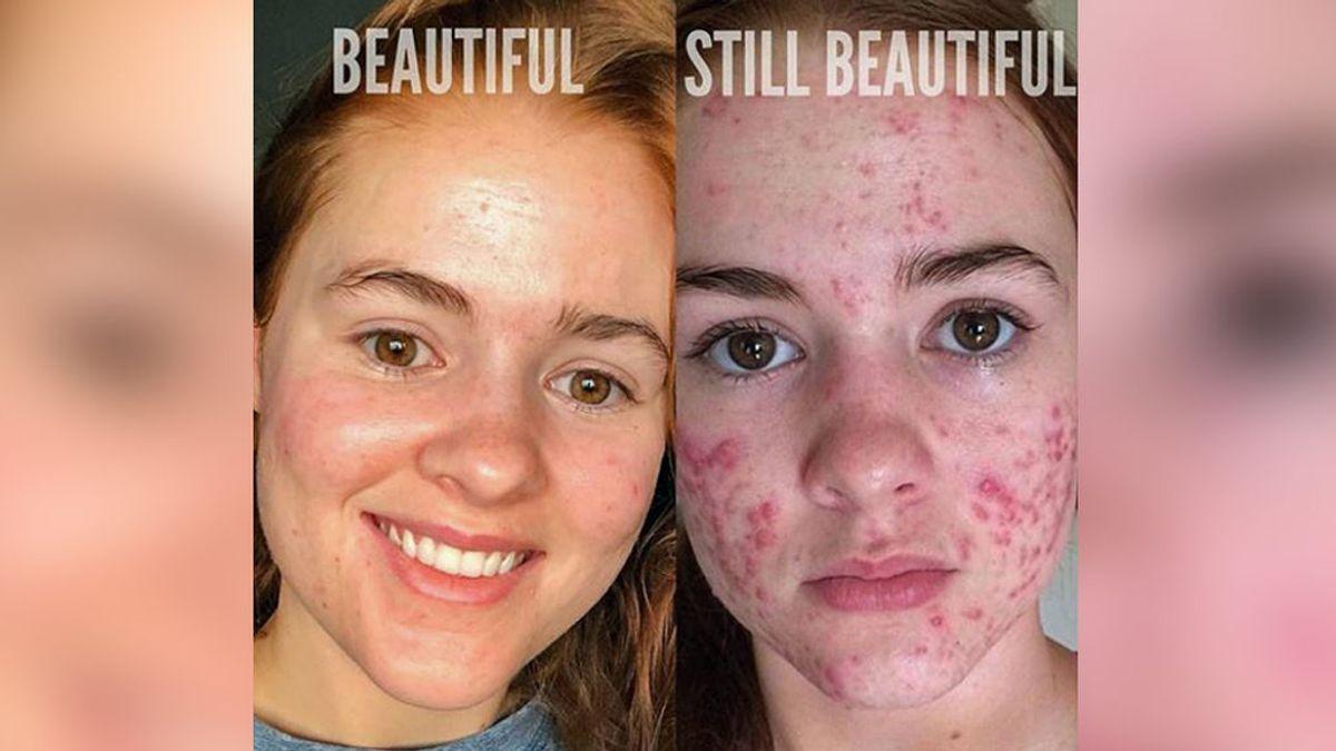 Las espinillas existen: así es el movimiento a favor del acné en redes sociales