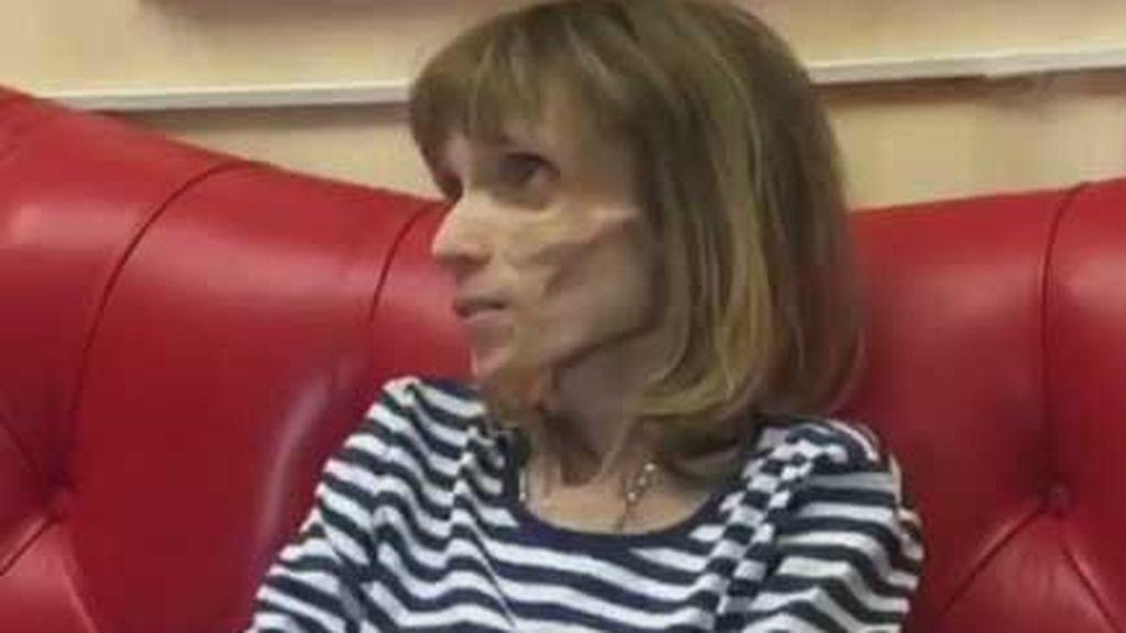 Kristina Karyagina, la joven rusa con anorexia que pesa solo 17 kilos
