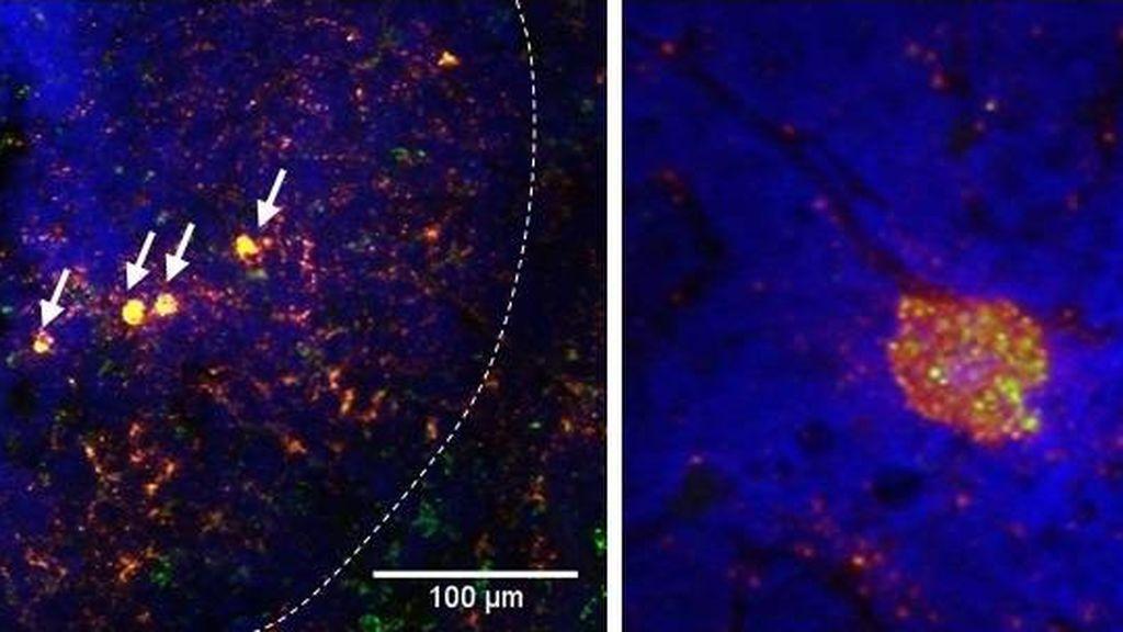 Un cóctel de anticuerpos monoclonales prueba su eficacia contra el VIH