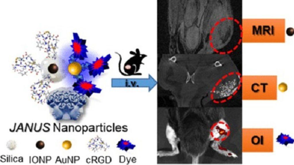 Tres modalidades de imagen molecular para el diagnóstico de tumores