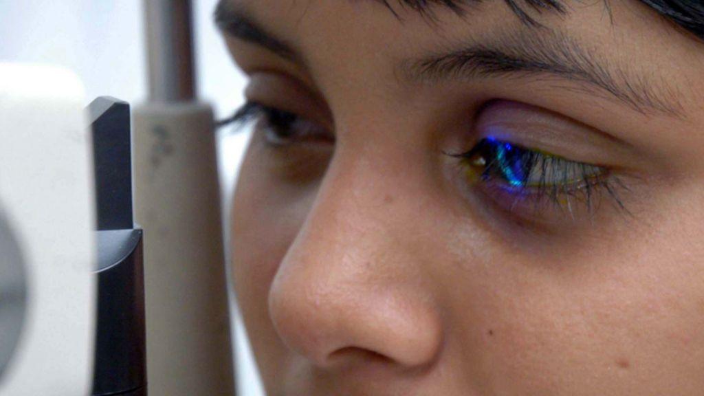 El 80% de los casos de discapacidad visual  se pueden evitar