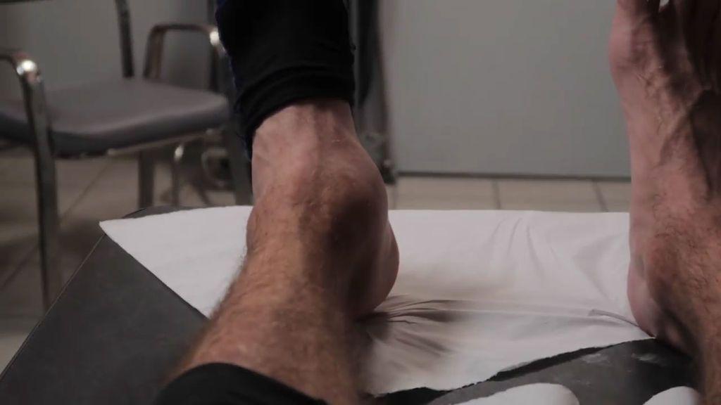 Los límites del parkour: el escalofriante estado en el que quedó el tobillo de un conocido traceur tras saltar sobre 25 escalones