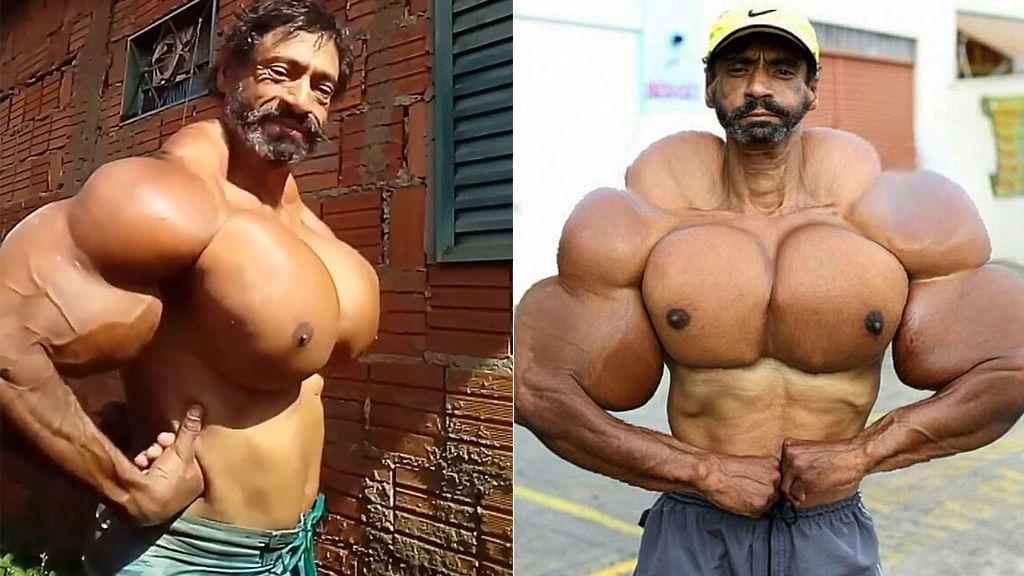 El increíble aspecto del 'Hulk' brasileño: de dejar las drogas, a inyectarse aceite y poder perder las extremedidades
