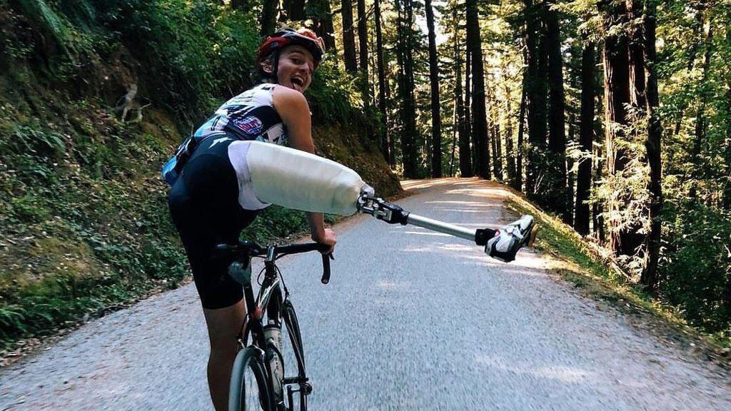 Le amputan una pierna y vuelve a subirse a una bicicleta: la historia de superación de Adrien Costa
