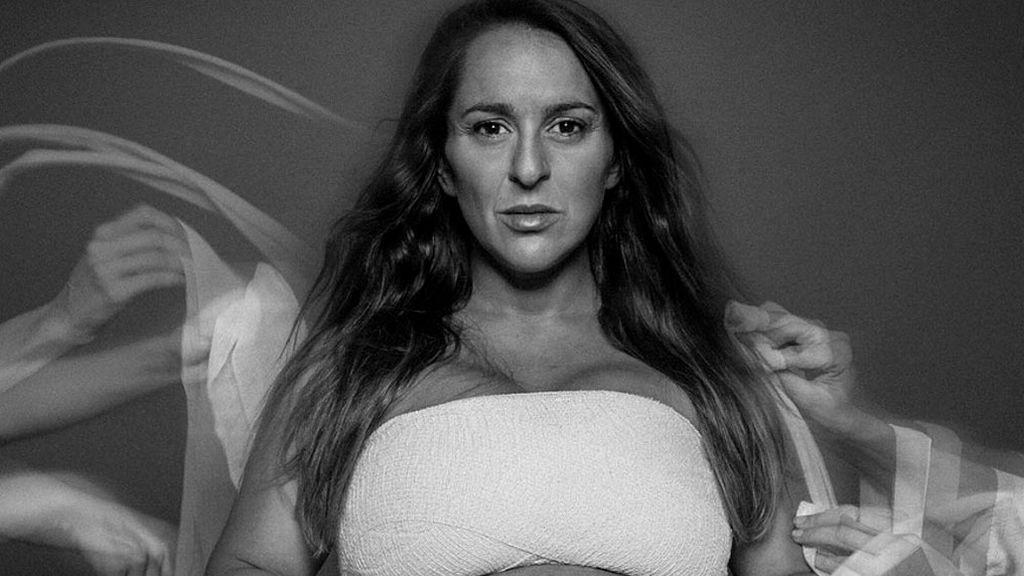 Pepa Rus embarazadísima se une a la campaña #Yovendomicuerpo para ayudar a la personas con Piel de Mariposa