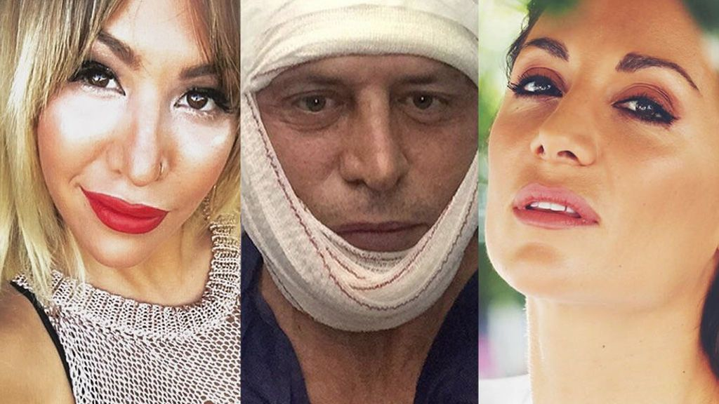 Kiko Matamoros, Nagore o Steisy: Las operaciones estéticas que no tuvieron el resultado deseado