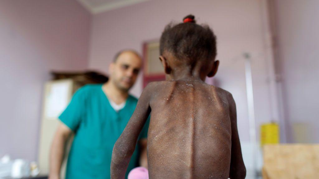 Amal, la trágica imagen de la muerte en Yemen: solo se alimentaba con un poco de leche