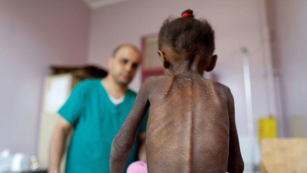 Amal, la mirada del hambre