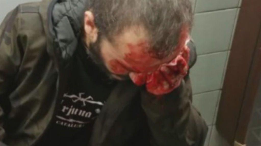 Herido un manifestante de Jusapol en la marcha en Barcelona