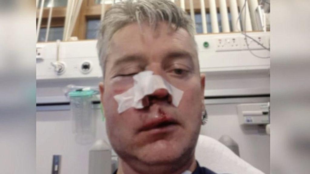Un árbitro muestra sus heridas por una brutal paliza tras pitar un partido amateur en Irlanda