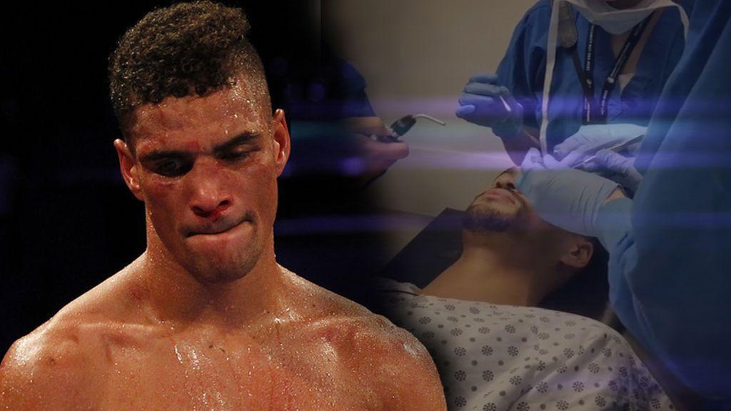 El drama de un boxeador olímpico: un golpe recibido está a punto de dejarle ciego