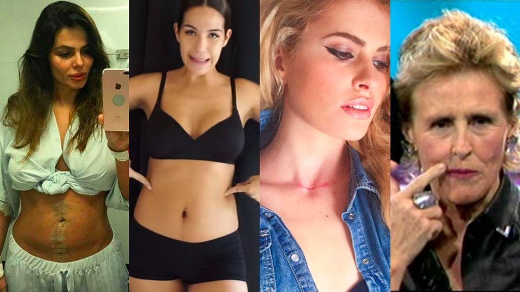 'Scar positive': Las famosas enseñan sus cicatrices y vencen sus complejos