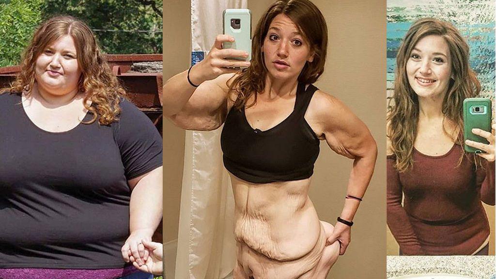 Muestra en Instagram cómo perdió 140 kilos en dos años y 3 kilos de exceso de piel