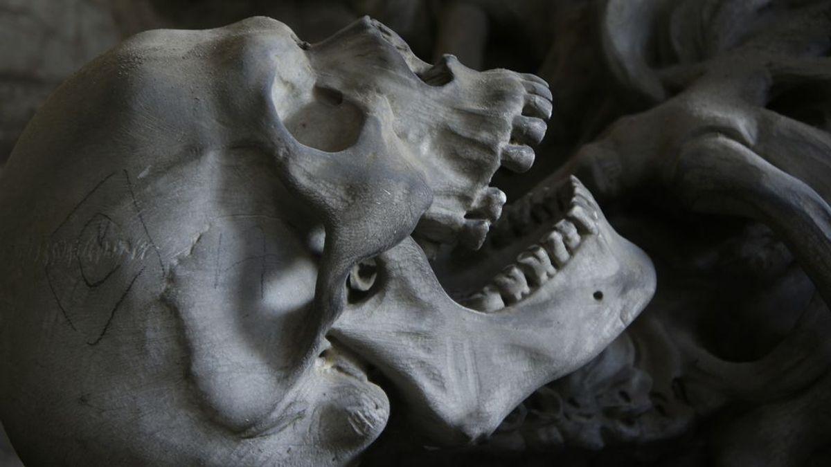 esqueleto-huesos-calavera