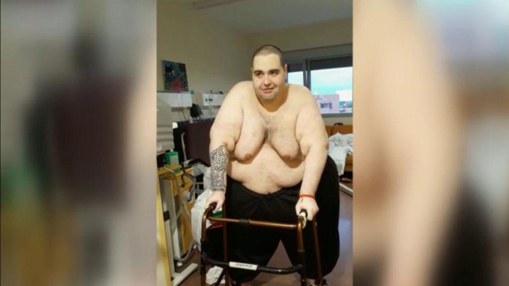 Teófilo Rodríguez, el joven con obesidad mórbida extrema, pierde 95 kilos en tres meses