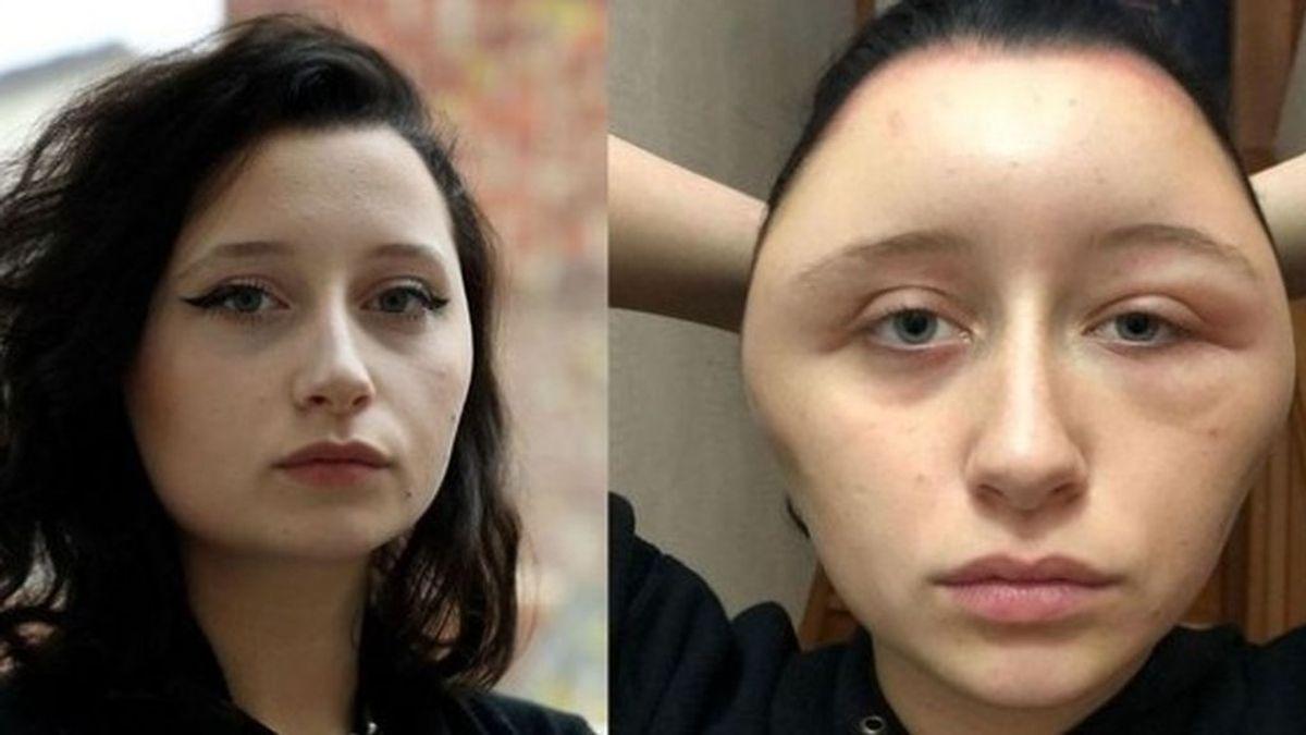 Una joven acaba con una fuerte reacción alérgica en la cara tras teñirse el pelo