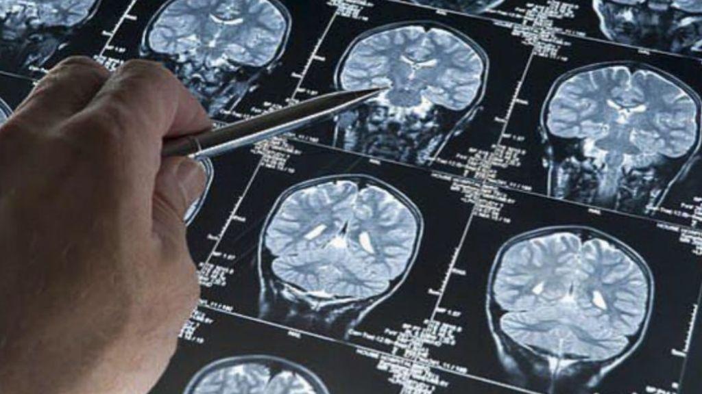 Sanidad retira un lote de un medicamento para el Alzheimer al no superar el estudio de estabilidad