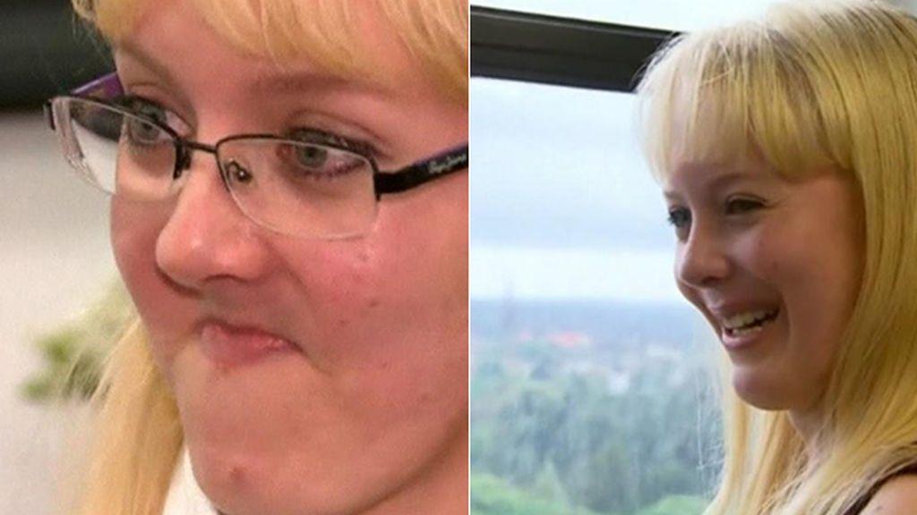 Una mandíbula imprimida en 3D cambia la vida de una enferma de cáncer