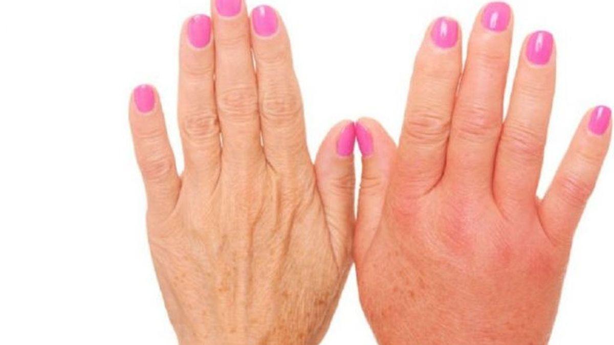 manos-hinchadas