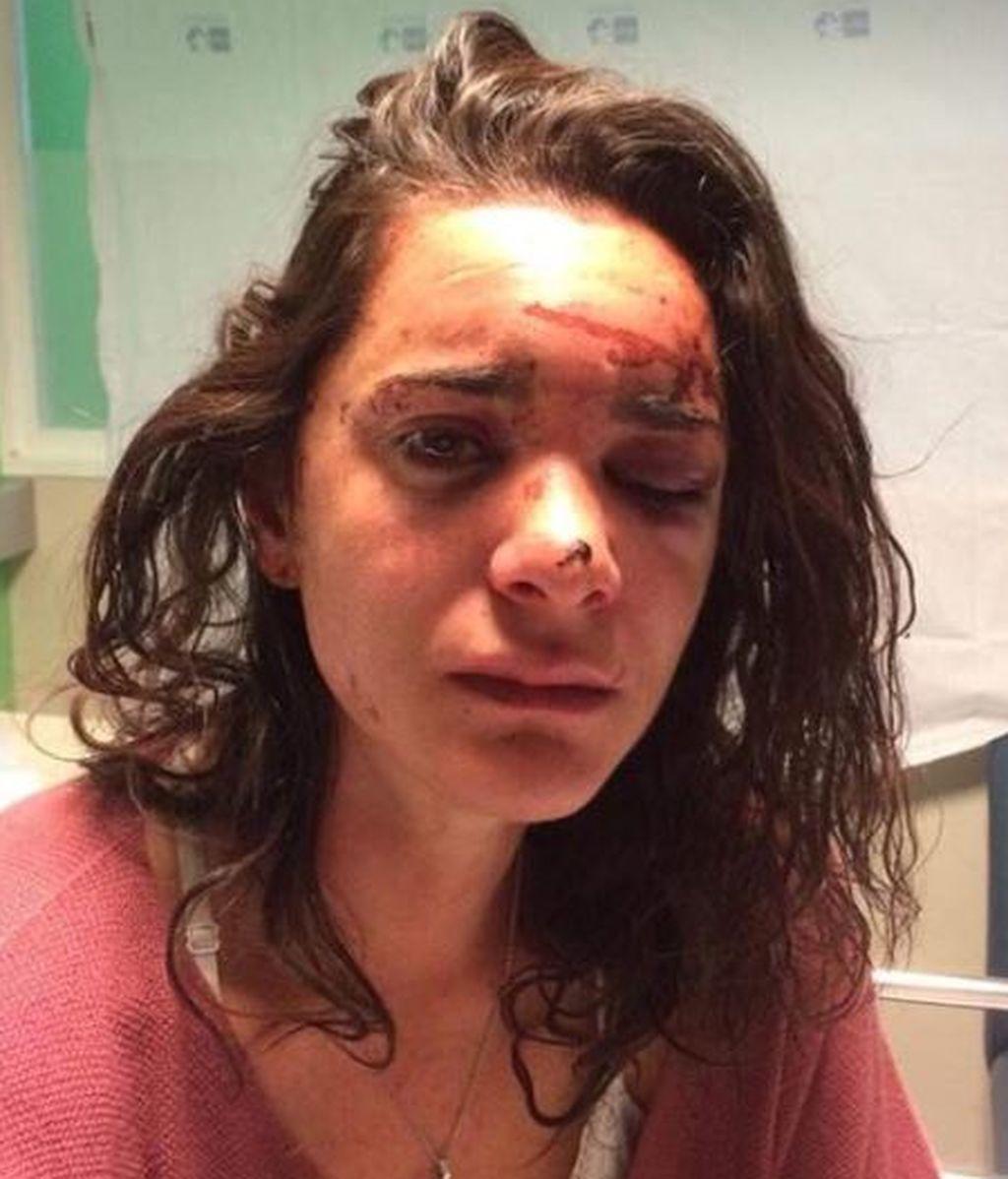 El valiente y desolador relato de una joven víctima de una agresión y violación en Aluche