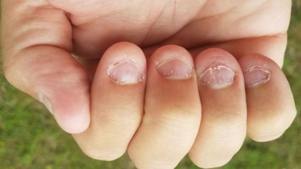 Más de la mitad de los niños se come la uñas, ¿por qué no logran dejarlo?