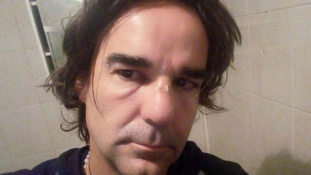El periodista Cake Minuesa, agredido el 21D, denuncia ante la policía