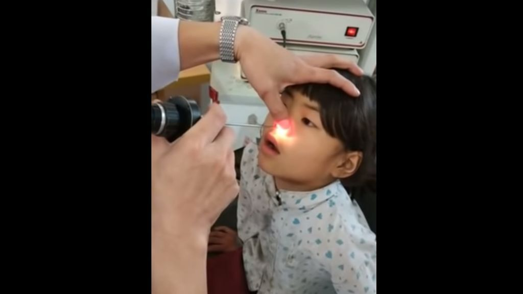 Una niña acude al médico por dolores de cabeza y le retiran de la nariz una extraña criatura