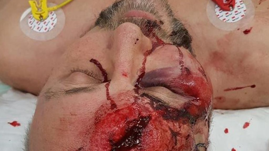 Brutal agresión a un miembro de la ultraderecha alemana