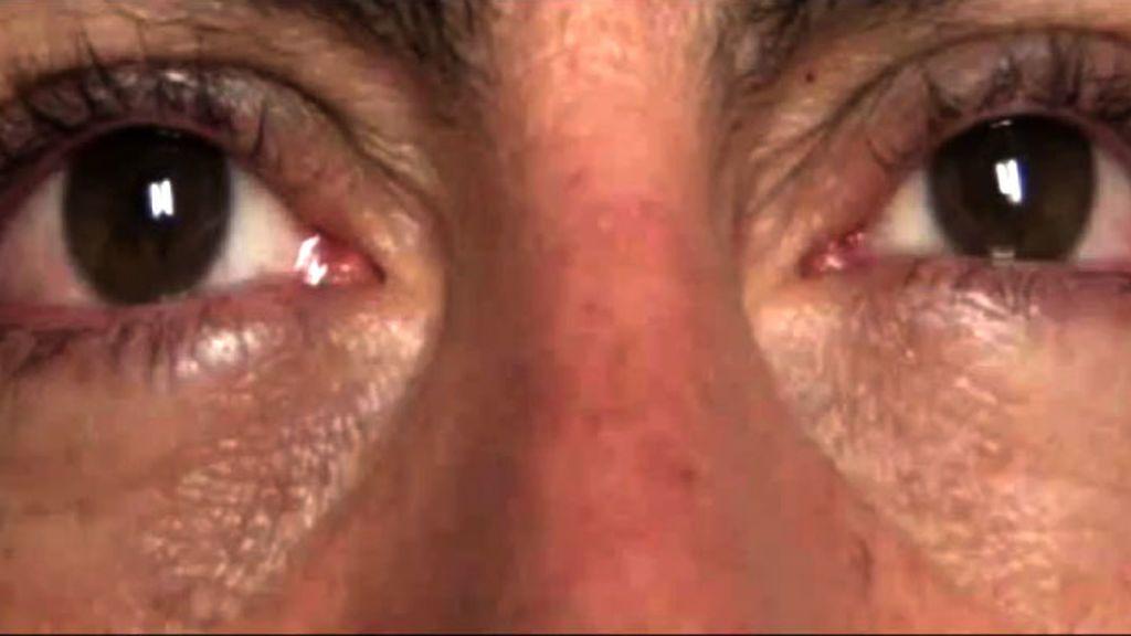 Una mujer sufre una lesión ocular al usar un medicamento para la disfunción eréctil por un error del farmacéutico