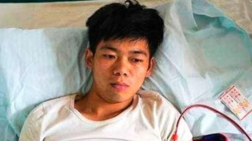 La terrible historia de Wang: vendió su riñón para comprar un iphone y ahora lo paga caro