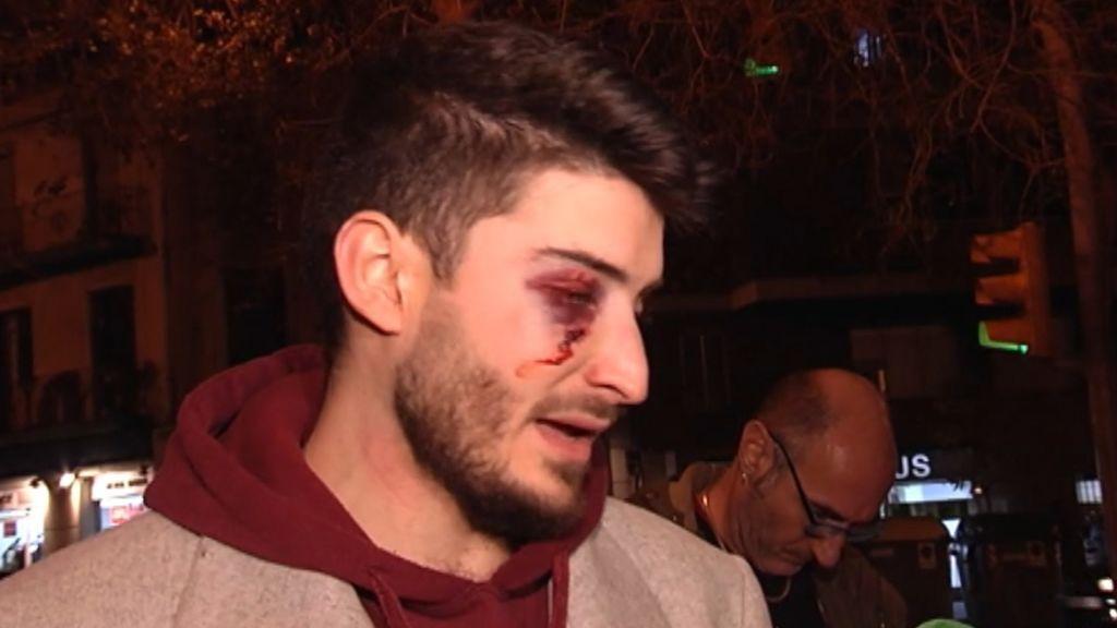 """Brutal agresión homófoba a un joven en el metro de Barcelona al grito de """"maricón"""""""