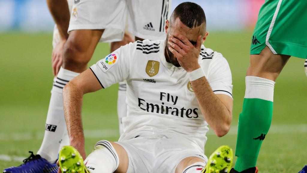El Real Madrid mira al mercado de fichajes tras confirmarse una fractura en la mano de Benzema