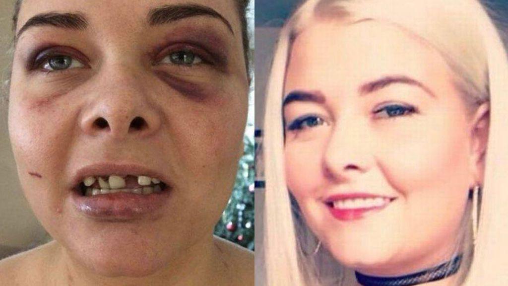 Brutal paliza de un hombre a su ex por cambiar su foto de perfil de Facebook