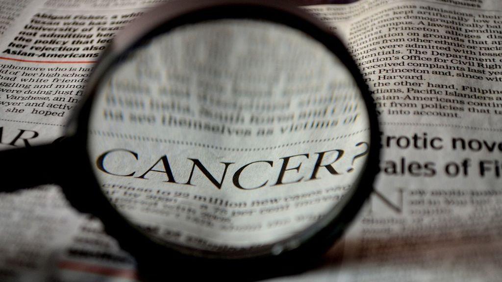 La colitis y la aparición del cáncer de colon están conectadas, según unos científicos estadounidenses