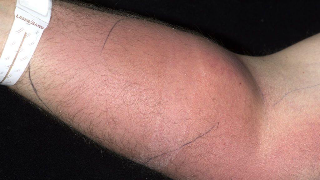 Hospitalizado un hombre tras inyectarse su propio semen para 'curarse' el dolor de espalda