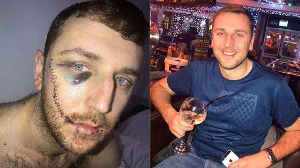 """Un joven inglés muestra las heridas tras una pelea entre ultras del Everton y del Millwall: """"No me puedo ni mirar al espejo"""""""
