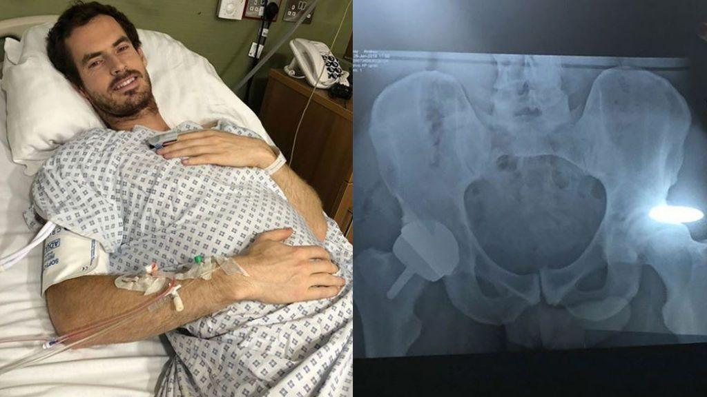 Andy Murray se recupera en Londres tras su última operación de cadera