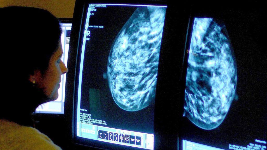 Dolores Aveiro lucha de nuevo contra el cáncer de mama: la importancia de las revisiones tras padecerlo