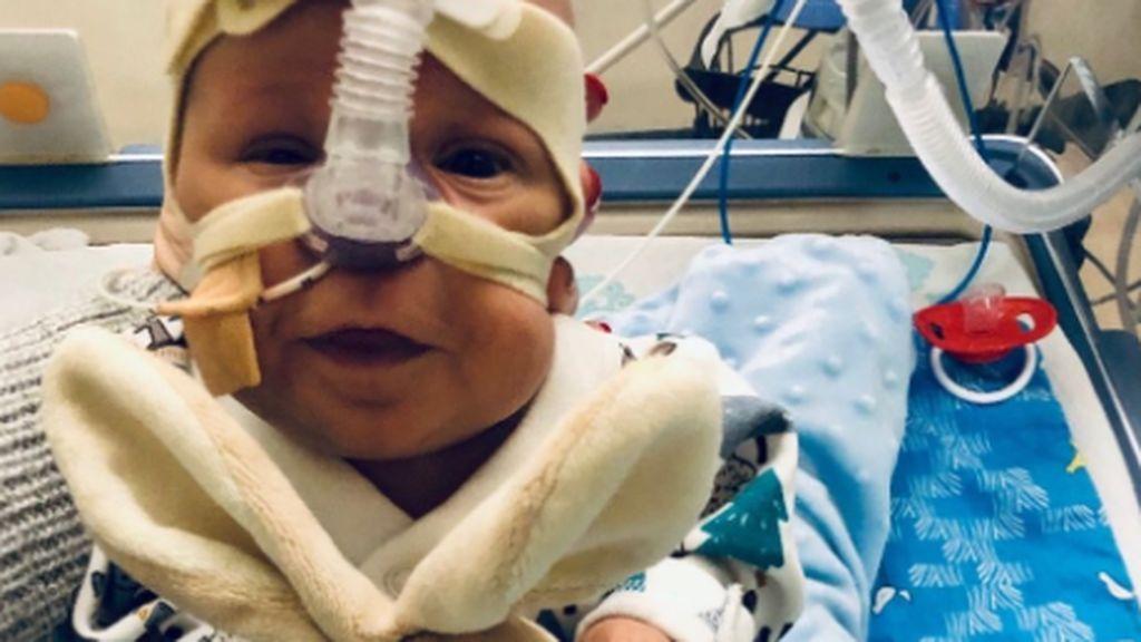 El milagro del bebé George: sobrevive con una posibilidad entre un millón