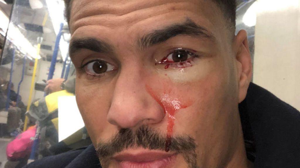 Qué pasa si te frotas pasta de dientes en los ojos: el boxeador Anthony Ogogo lo ha probado por error